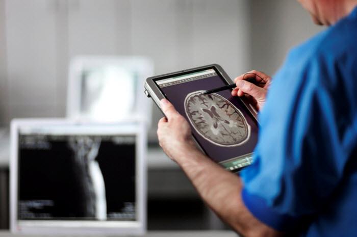Maladie d'Alzheimer : dépistage et diagnostic, quelle différence ?