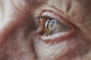 Soigner et prévenir les problèmes de peau liés à l'avancée en âge